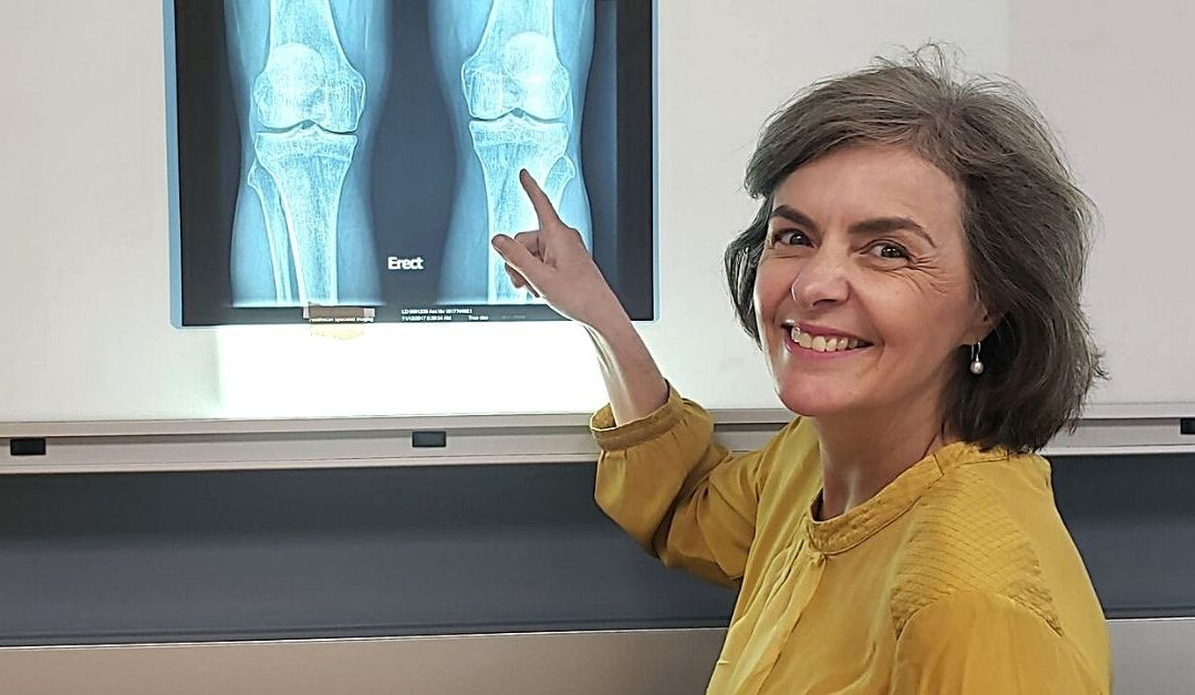 Knee osteoarthritis study seeking participants
